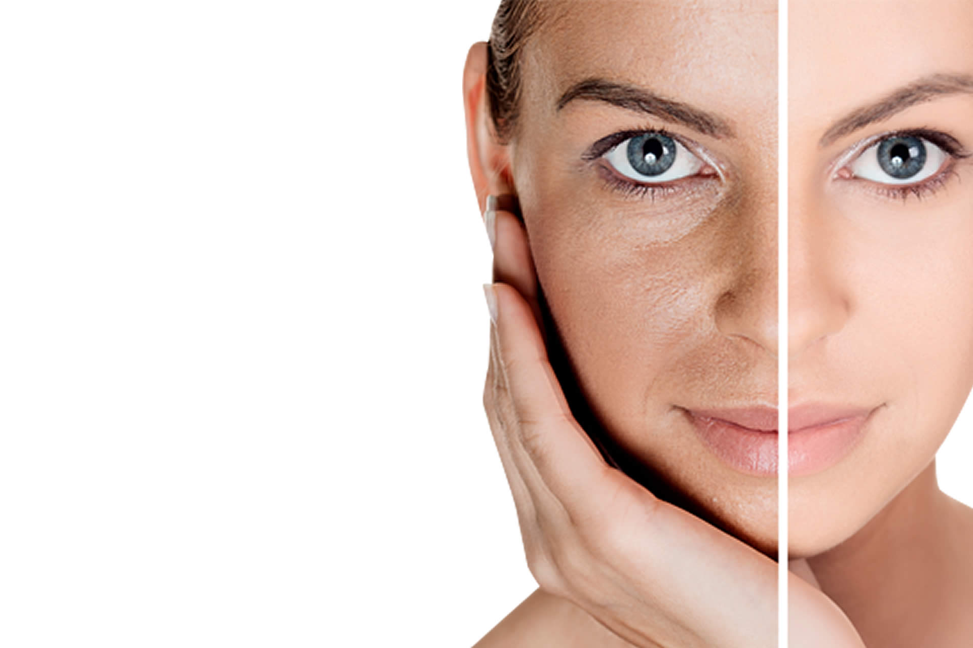 acne skin treatment at Daydreams Skin & Beauty, Bury St Edmunds
