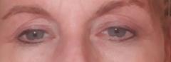 Plasma treatment after 7 weeks