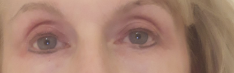 Sara post plasma treatment
